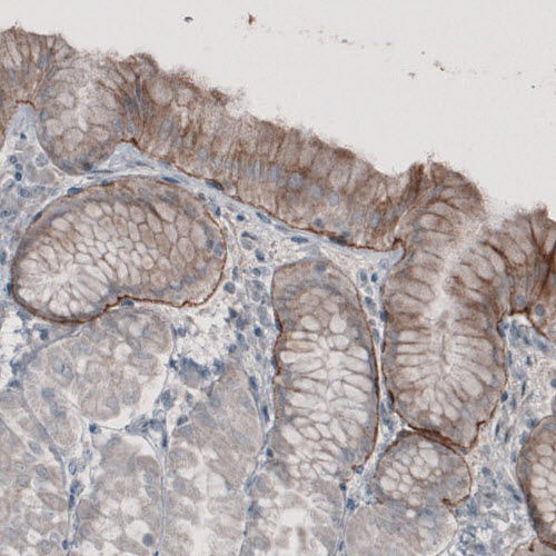 Anti-LAMA3 Antibody (AMAb91123)