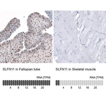Anti Slfn11 Antibody Hpa023030 Atlas Antibodies